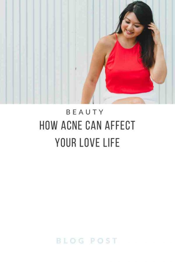 How acne can affect your love life